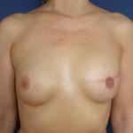 finální fáze rekonstrukce prsu