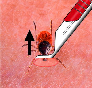Removing tick