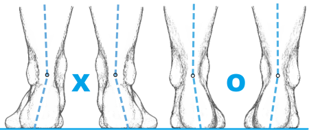 deformity nohou